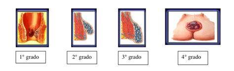 emorroidi interne congeste immagini e foto di emorroidi esterne per tipo e grado