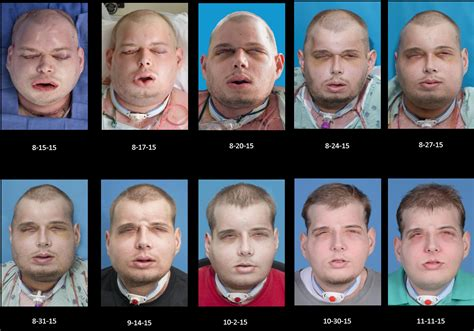 Design Your Own Home Software World S Most Complex Face Transplant Operation Made