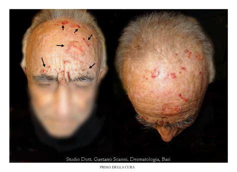 macchie sulla testa come eliminare le macchie dal viso macchie di brufoli