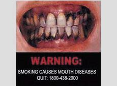 WHO | Smoking causes mouth disease - Image 1 Lung Cancer From Smoking Cigarettes