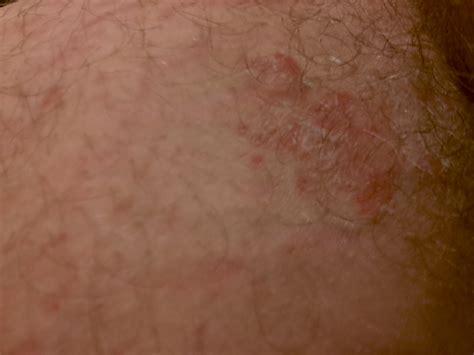 rash on groin blister sores and rash around the groin