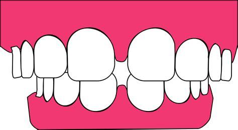 Jual Pemutih Gigi Di Apotik gambar gusi berdarah sakit gambar gigi di rebanas rebanas