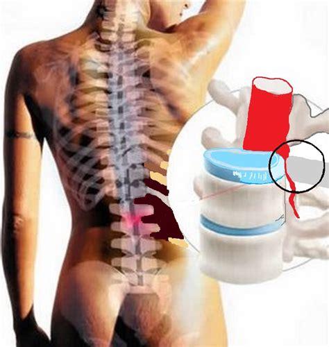 Penyakit Penyakit Yg Di Sebabkan Makanan Dan Minuman Pada Anak pusat rawatan prissna semua penyakit disebabkan darah
