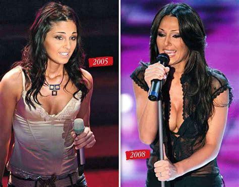 dive rifatte prima e dopo seno rifatto vip prima e dopo foto gossip
