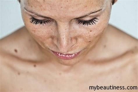 treatment to remove dark spots on face women beauty