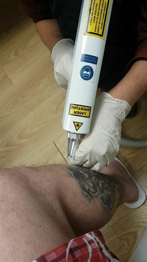 lazor tattoo removal laser removal home
