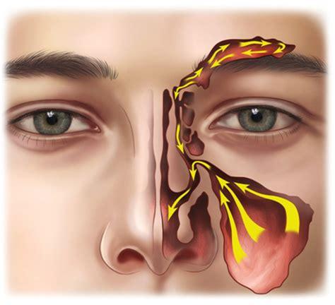 dolore interno seno sinusite cronica nuova terapia senza dolore e toni