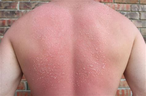 heat rash from tanning bed pin sun poisoning rash allergy pictures on pinterest