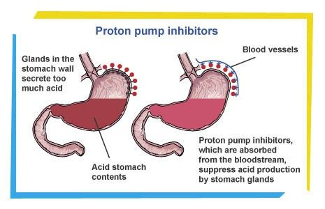 Proton Inhibition Did Midterm Election Results Give President Obama Acid