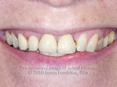 tooth straightening  orthodontics lake forest il