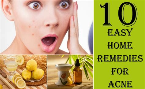 12 Best Home Remedies For Pimples by Image Gallery Home Remedies Acne Treatment