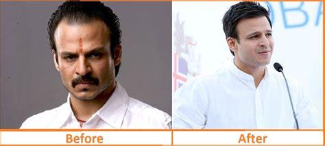 salman khan hair transplant cost top hair transplant stories of cricketers politicians