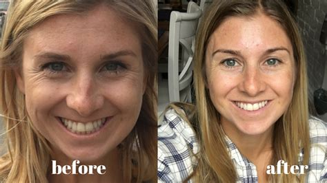 Reviews Before And After Pictures vital proteins review before and after picture
