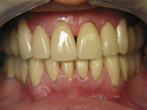 Leaves To Get Teeth Whitened by Herbs To Whiten Your Yellowish Teeth Naturally Stethnews