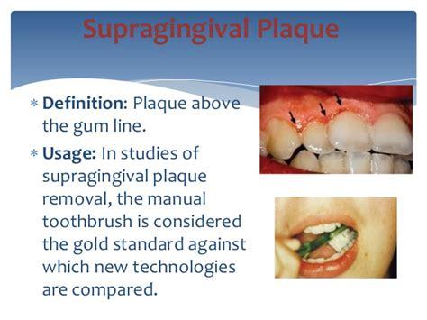 pocket setter definition tartar definition dental picture and images