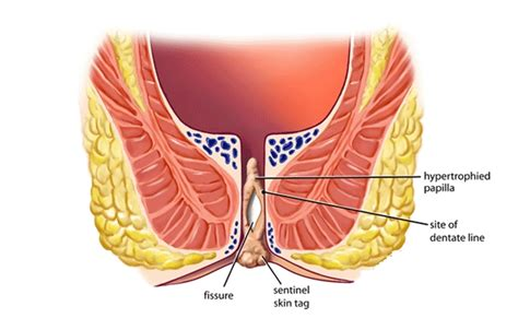 why anal pain 5 signs and symptoms of constipation how to identify