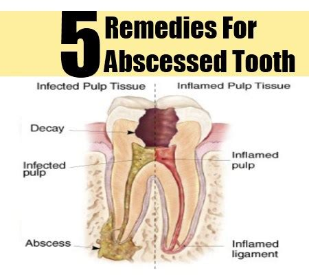 Abscessed Tooth Home Remedy by 5 Abscessed Tooth Herbal Remedies Treatments And