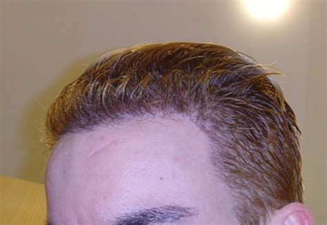 types of hair lines image