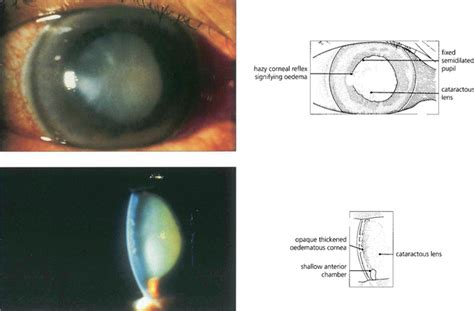 ophthalmic imaging posterior segment imaging anterior eye photography and slit l biomicrography applications in scientific photography books secondary glaucoma ento key