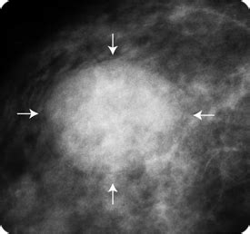pictures of tumors and cysts breast cysts and cancer
