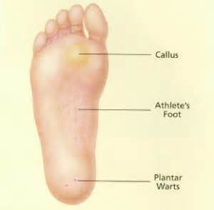 how do you get planters warts skin and nail disorders