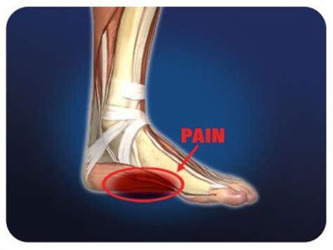 dolore arco plantare interno hai un dolore al piede le possibili cause e la soluzione