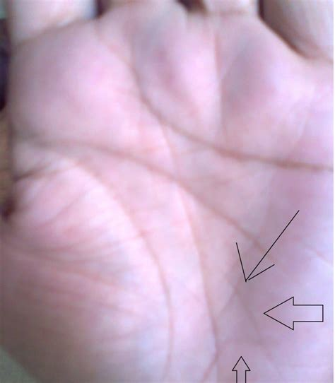 Love marriage indicative lines in palmistry