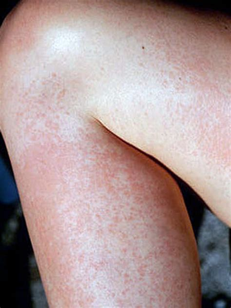 heat rash prickly heat rash pictures