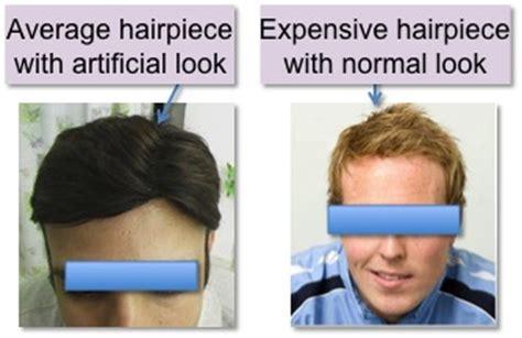 hair weaves for balding men hair weaves for balding men hair loss causes in men