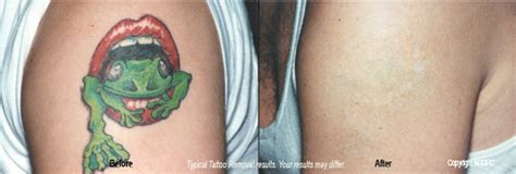 can color tattoos be removed removal treatment lumberton cosmetic surgery