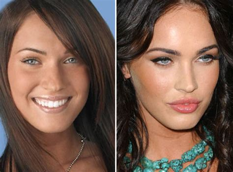 5 amazing celebrity nose jobs miami plastic surgery blog
