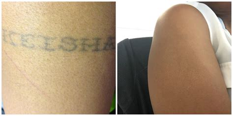 tattoo removal macon ga 28 best removal in atlanta removal
