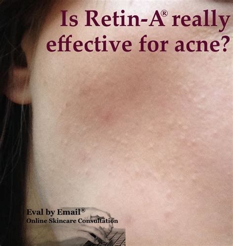 Anti Acne Large Skin Solution acne skin can texture problems due to