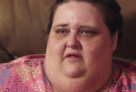 perms after surgery obese woman faces permanent paralysis following weight