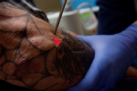 tattoo removal sacramento frequently asked questions about laser tattoo removal