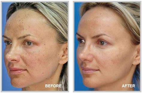 light chemical peel before and after microlaserpeel