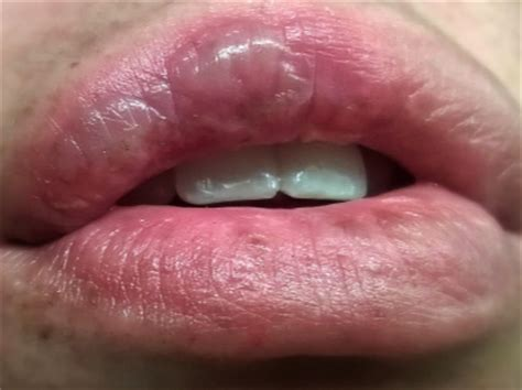 blister on inside of mouth white bubble in mouth love with woman