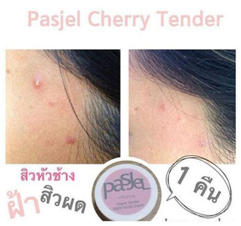 Pasjel Cherry Tender pasjel cherry tender 10g thailand best selling products shopping