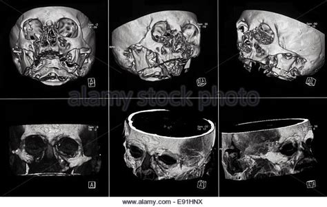 mri sections cross section bone stock photos cross section bone stock