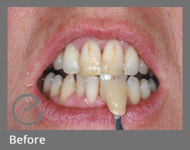 teeth whitening treatments ealing dental