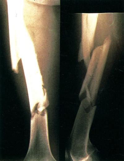 diversi tipi di piedi tipi di infezione piede