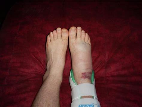 leg sprain numbness in foot after ankle sprain things you didn t