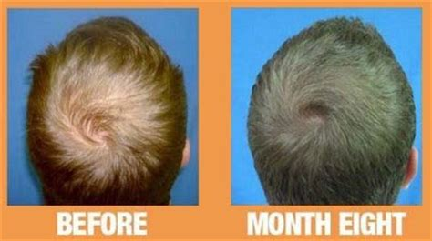 can platelet rich plasma stop hair loss and grow new hair can prp cure hairloss wembly clinic