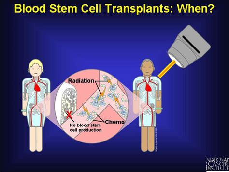 4 Blood Stem Cell Transplants When