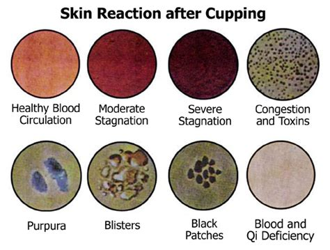 Detox Reaction After cupping therapy detoxification