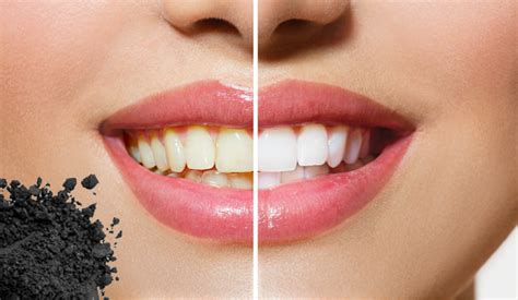 charcoal whitening work waterstone family dentistry