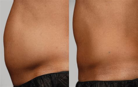 light rx before and after sculpsure before after photos lightrx face body