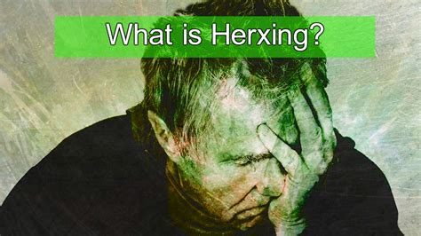 Laurcidin Monolaurin Herxing How To Detox From Die by What Is Herxing What Is Lyme Disease