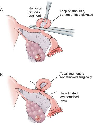 chances of pregnancy after tubal ligation during c section surgical sterilization abdominal key