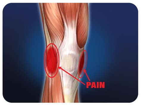 collaterale interno ginocchio acl mcl knee ligament injuries pro tec athletics
